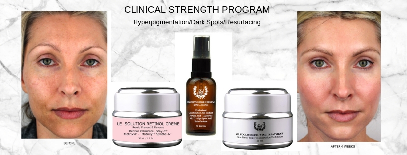 skin-brightening-system-for-hyperpigmentation-1-.jpg