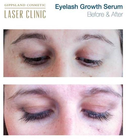 Eyelash Growth Serum  3.5ml