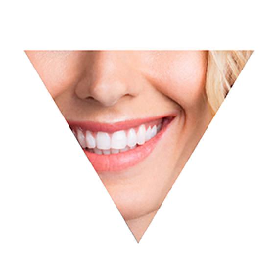 triangle_1