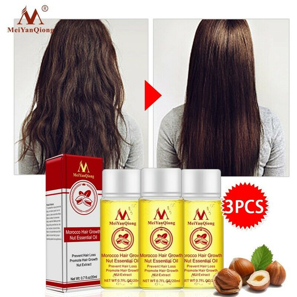 MeiYanQiong Morocco Nuts Hair Fast Powerful Growth Essence 3PCS Preventing  Q2Z9