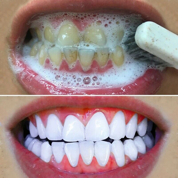 Lamilee Teeth Whitening Powder Cleansing Quick Stain Removing Oral Care Phy