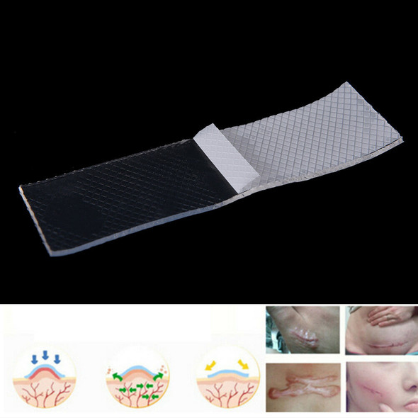 Scar Remove Trauma Burn Silicon Patch Reusable Acne Gel Skin Repair FT