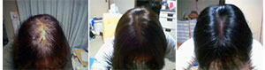 Funori is also known to reduce hair loss and promote new growth in some individuals