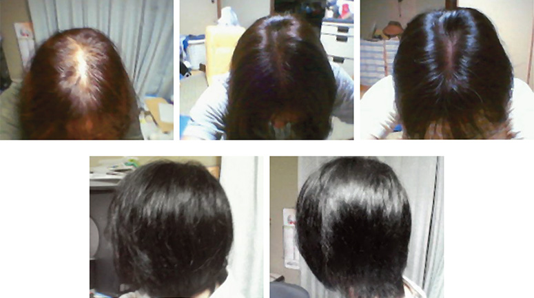 funori-seaweed-promoting-hair-growth-before-after-picture-776.jpg