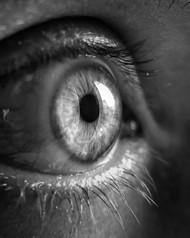 Why Do I See Eye Webs?