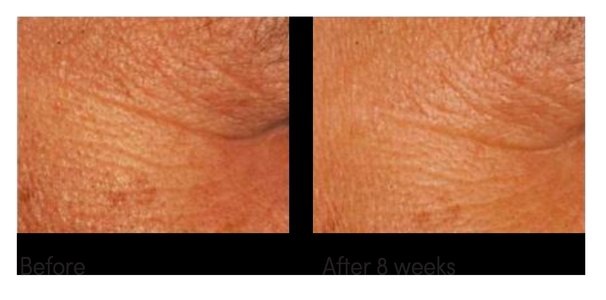 merlot-advanced-repair-skin-before-after.png