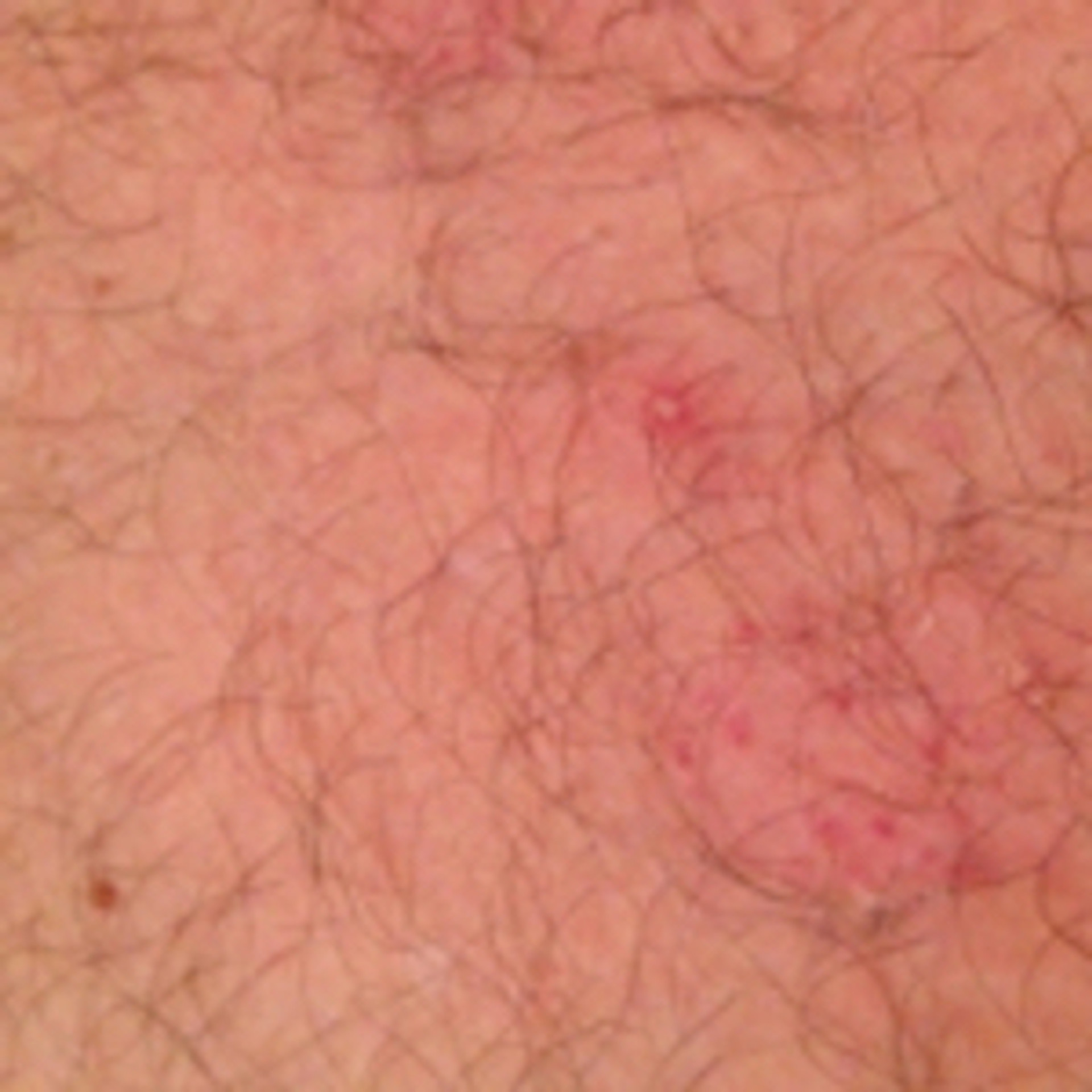 Photo of treatment for molluscum contagiosum near penis
