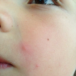 Molluscum contagiosum treatment for babies and children.