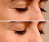 Endor Technologies Eye Contour Cream