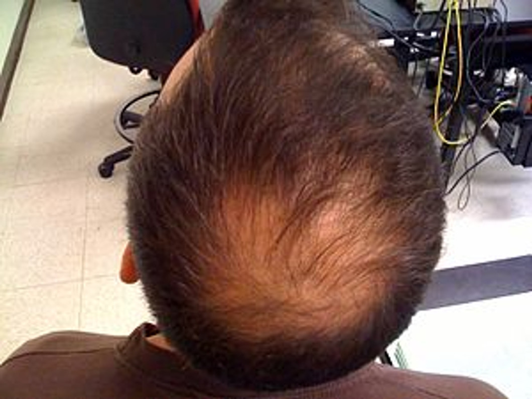 HAIR LOSS DUE TO DHT SENSITIVE HAIR FOLLICLES