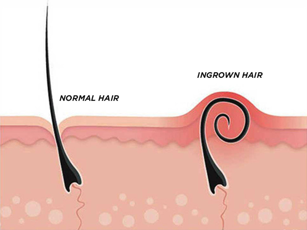 PREVENT INGROWN HAIRS, RAZOR BUMBS, RASH AND CUTS WITH PRIVA SHAVE