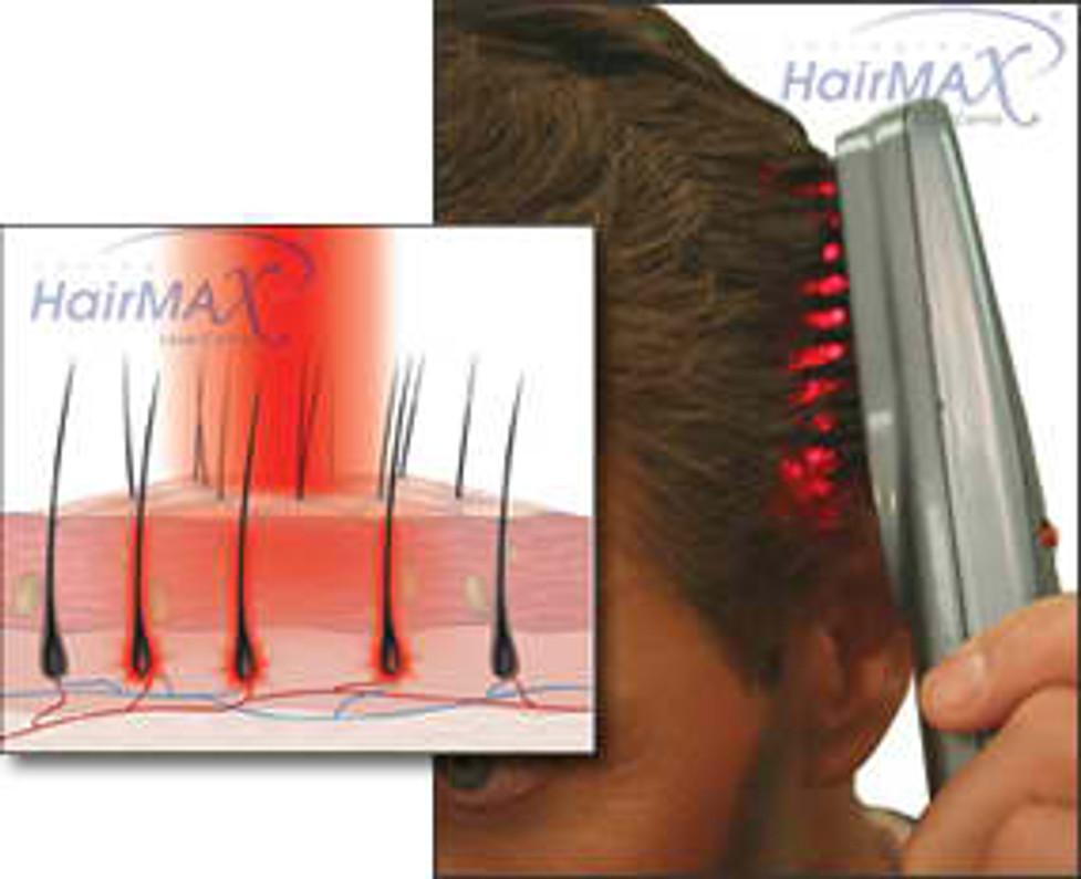 SCALP MASSAGE TO TREAT HAIR LOSS