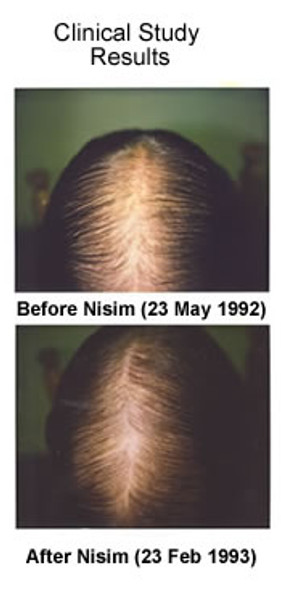Nisim Hair Loss Travel Kit