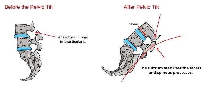 Illustrative Example of Fracture