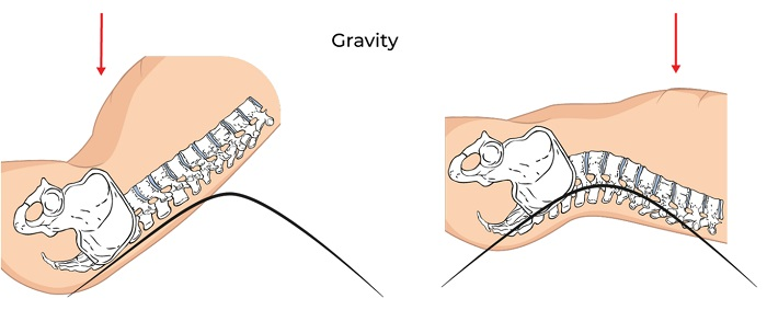 Illustrative Example of Gravity Effects on a Sit-Up