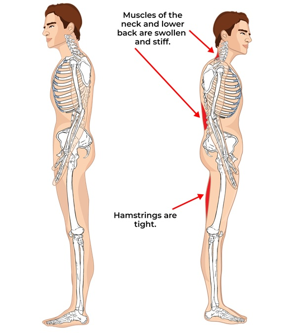 Illustrative Example of Evaluating Posture with Posterior Musculature