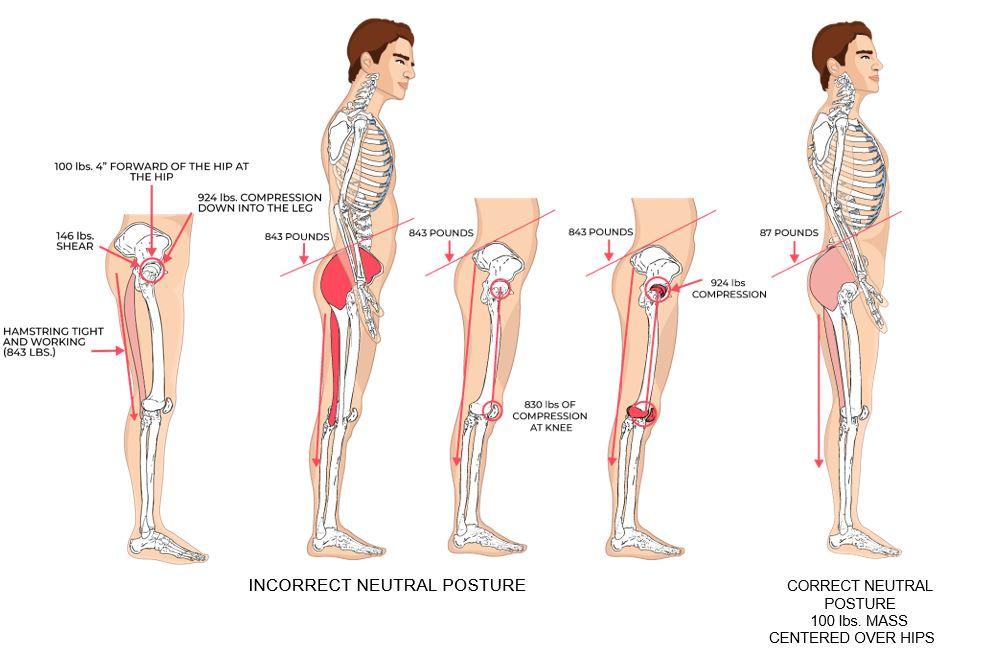 Illustrative Example of Incorrect vs. Correct Neutral Posture