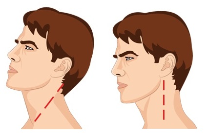 Illustrative Example of the Neck Curve
