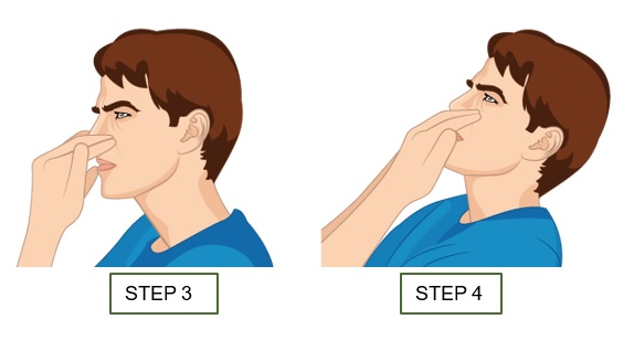 Illustrative Example of Steps 3 and 4 of the Neck Flexion with Bare Hands