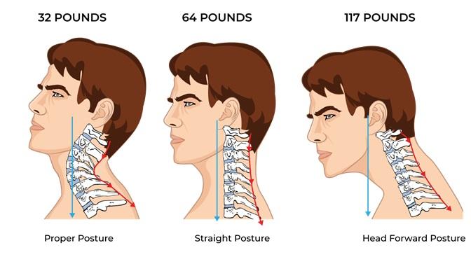 Illustrative Example of Neck Posture Compression Comparison