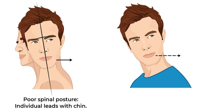 Illustrative Example of Poor Spinal Posture