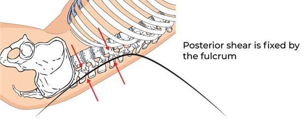 Illustrative Example of Posterior Shear Fixed by the Fulcrum