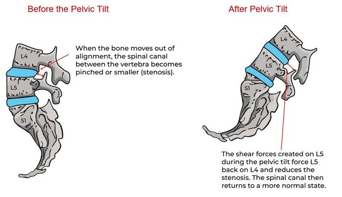 Illustrative Example of Stenosis
