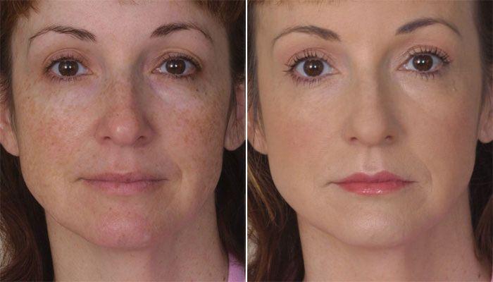 light-before-after-carell.jpg