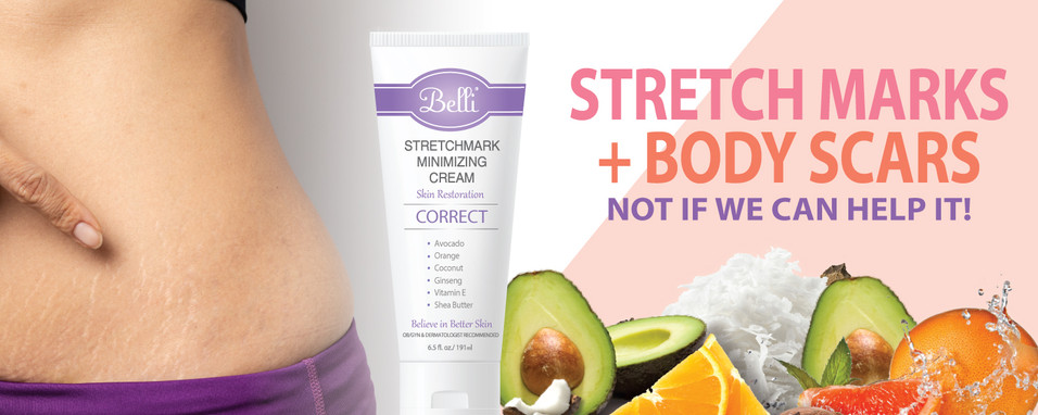 Preventing and Treating Stretch Marks During Pregnancy