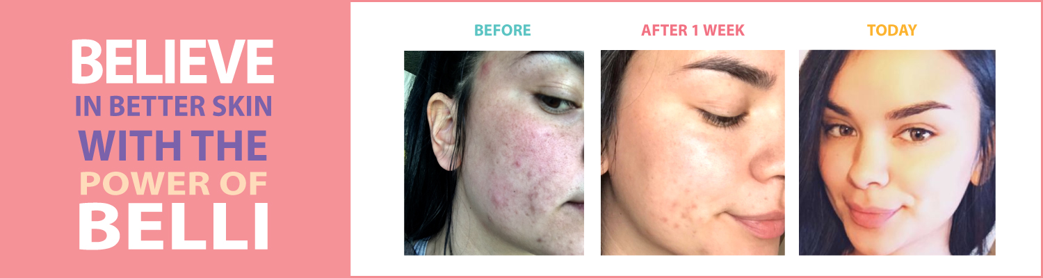 before-after-belli-acne-treatment-proof.jpg