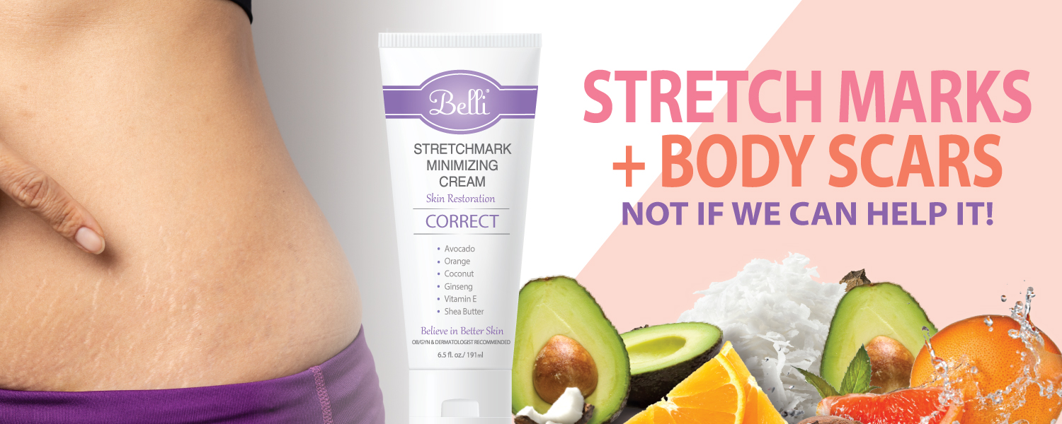 Preventing And Treating Stretch Marks During Pregnancy Belli