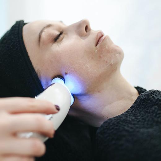 Five Ways to Banish Acne Scars