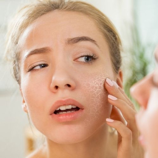 Dry and Flaky Complexion? Here's How to Deal With Winter Skin