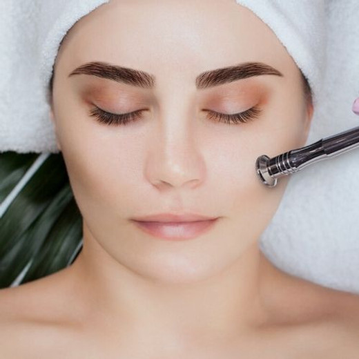 Microdermabrasion: What Is It and How Can It Improve Your Skin?