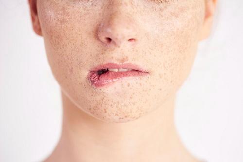 Freckles Skin