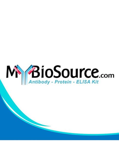 Mouse High molecular weight Adiponectin ELISA Kit