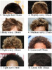 density of toupee hair