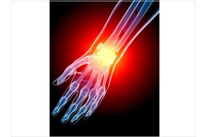 Wrist/Hand Arthritis