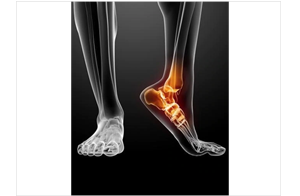 Foot Injuries & Conditions