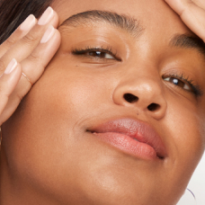 Hyperpigmentation and Dullness