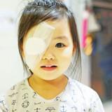 Unusual Eye Injuries