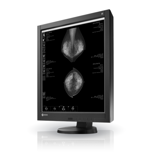 LAC RadiForce, LAC RadiForce GX540 Medical Viewer, LAC RadiForce GX540, Medical Viewer, LAC GX540, GX540 Medical Viewer, RadiForce GX540