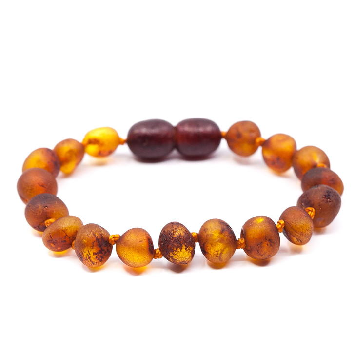 RAW cognac amber teething ankle bracelet for Maximum Pain Relief