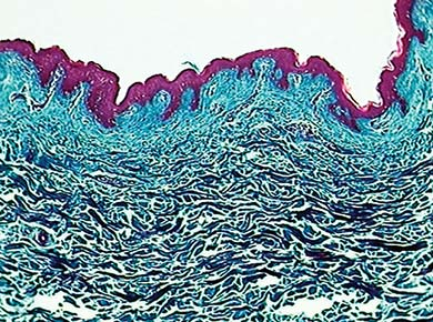 Microscopic View of Buffalo Hide