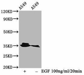 Anti-Phospho-PPP2CA Y307 Antibody RACO0062