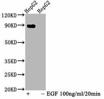 Anti-Phospho-STAT5A Y694 Antibody RACO0070