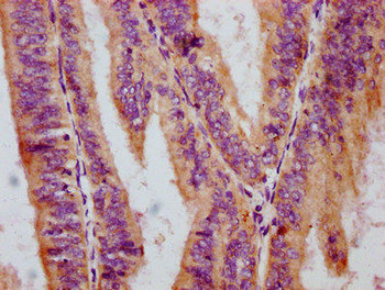 Anti-Phospho-RAF1 S259 Antibody RACO0103