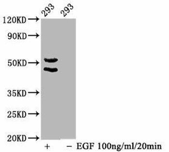 Anti-Phospho-MAPK8/MAPK9/MAPK10 T183/T183/T221 Antibody RACO0122