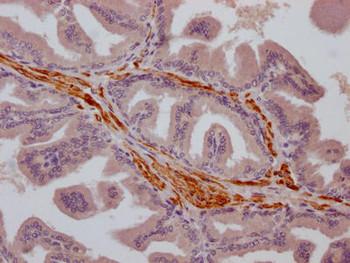 Anti-TRPM8 Antibody RACO0385