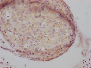 Anti-CTNNB1 Antibody RACO0487